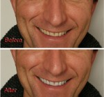 How to Quickly and Effectively Whiten Teeth in Photoshop
